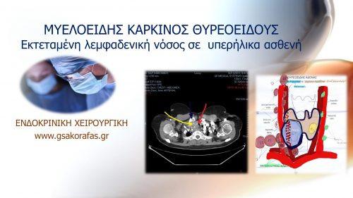 Μυελοειδής καρκίνος θυρεοειδούς σε υπερήλικα ασθενή με εκτεταμένες λεμφαδενικές μεταστάσεις