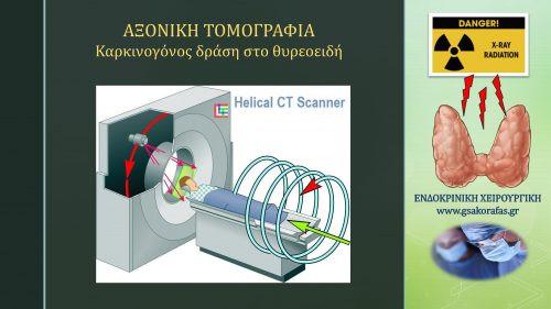 Αξονική τομογραφία και θυρεοειδής - καρκινογόνος δράση
