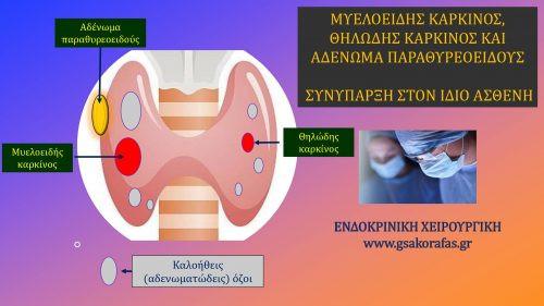 Μυελοειδής καρκίνος θυρεοειδούς και θηλώδης καρκίνος θυρεοειδούς και αδένωμα παραθυρεοειδούς στον΄ιδιον ασθενή