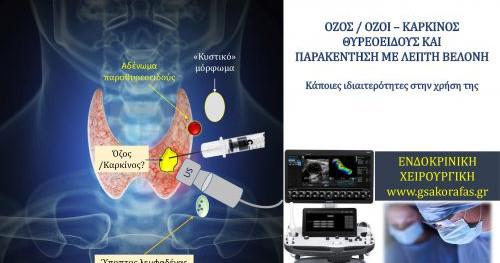 Όζος / όζοι – Καρκίνος θυρεοειδούς και παρακέντηση με λεπτή βελόνη (FNA)