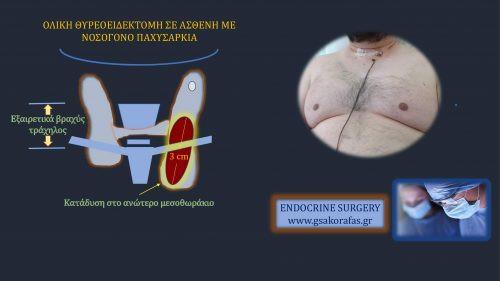 Ολική θυρεοειδεκτομή για ύποπτο όζο θυρεοειδούς σε ασθενή με νοσογόνο παχυσαρκία