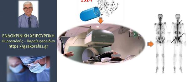 Καρκίνος θυρεοειδούς - Σπινθηρογράφημα μετά θυρεοειδεκτομή και πριν την θεραπεία με ραδιενεργό ιώδιο