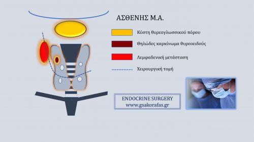 Κύστη θυρεογλωσσικού πόρου - ταυτόχρονη εκτομή με ολική θυρεοειδεκτομή και λεμφαδενικό καθαρισμό σε ασθενή με διάγνωση 'θηλώδης καρκίνος θυρεοειδούς'