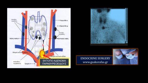 Υπερπαραθυρεοειδισμός σε ασθενή με έκτοπο αδένωμα παραθυρεοειδούς