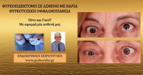 Υπερθυρεοειδισμός (νόσος Graves'), θυρεοτοξική οφθαλμοπάθεια και θυρεοειδεκτομή – πότε και γιατί?