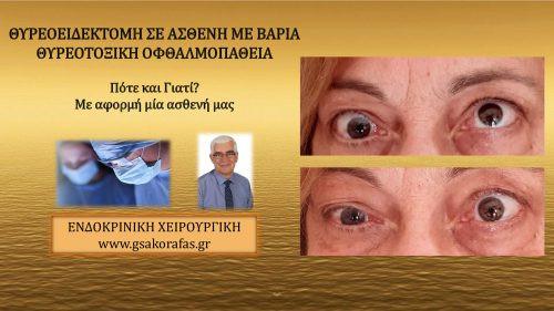 Υπερθυρεοειδισμός (νόσος Graves'), οφθαλμοπάθεια (θυρεοτοξική οφθαλμοπάθεια) και θυρεοειδεκτομή – πότε και γιατί? (με αφορμή μία ασθενή μας).