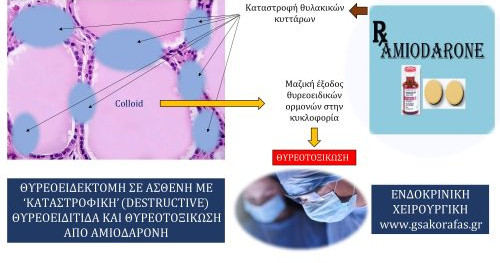Ολική θυρεοειδεκτομή σε ασθενή με 'καταστρεπτική' (destructive) θυρεοειδίτιδα