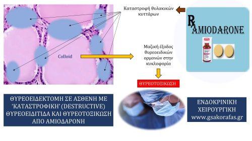 Καταστρεπτική θυρεοειδίτιδα και υπερθυρεοειδισμός (θυρεοτοξίκωση) από αμιοδαρόνη