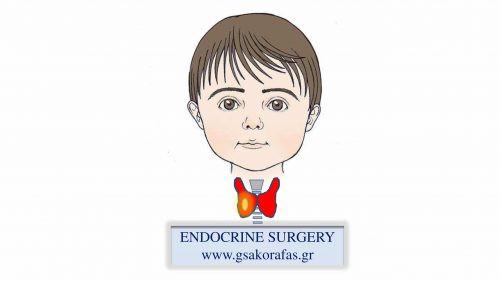 Όζος θυρεοειδούς - ολική θυρεοειδεκτομή σε παιδί ηλικίας 10 ετών
