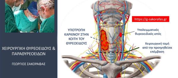 Καρκίνος θυρεοειδούς–υποτροπή στην κοίτη του θυρεοειδούς: προβλήματα & ιδιαιτερότητες σε ασθενή μας