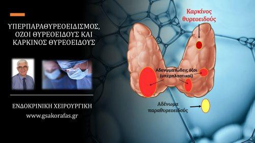 Πρωτοπαθής υπερπαραθυρεοειδισμός (αδένωμα παραθυρεοειδούς), όζος / όζοι θυρεοειδούς και καρκίνος θυρεοειδούς (συνύπαρξη στον ίδιο ασθενή) – η σημασία της σωστής προεγχειρητικής αξιολόγησης