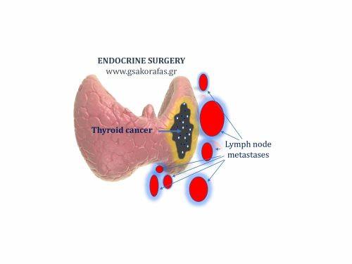 Καρκίνος θυρεοειδούς, λεμφαδενικές μεταστάσεις και θυρεοειδεκτομή