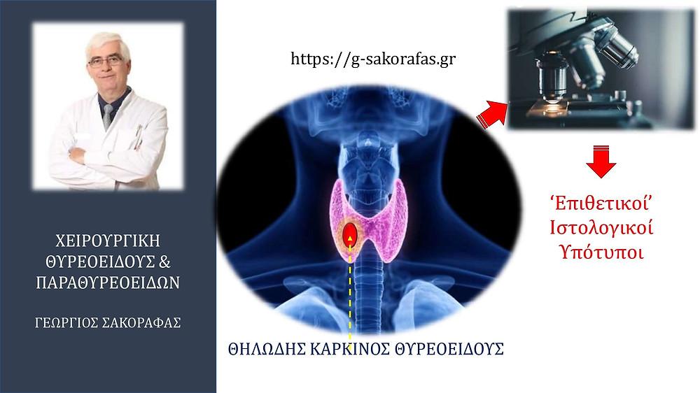 Θηλώδης καρκίνος θυρεοειδούς - Ιστολογικοί υπότυποι με περισσότερο επιθετική βιολογική συμπεριφορά