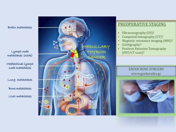 Μυελοειδής καρκίνος θυρεοειδούς και απεικόνιση