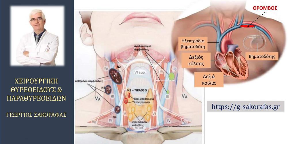 Καρκίνος θυρεοειδούς με (μη ασυνεχείς, 'non-skip') λεμφαδενικές μεταστάσεις-ολική θυρεοειδεκτομή και λεμφαδενικός καθαρισμός σε ασθενή με τοποθέτηση βηματοδότη και οξεία θρόμβωση της αριστεράς υποκλειδίου φλεβός: τέσσερα χρήσιμα 'πρακτικά μαθήματα'