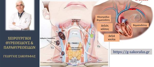 Αντιμετώπιση Καρκίνου θυρεοειδούς  σε ασθενή με τοποθέτηση βηματοδότη και οξεία θρόμβωση