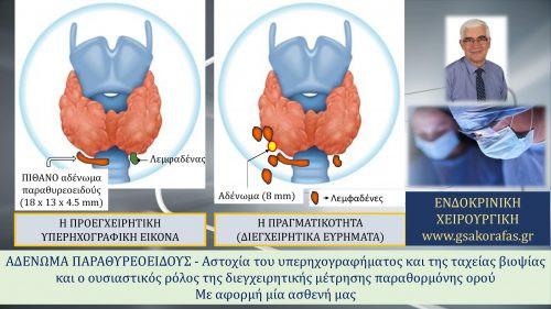 Πρωτοπαθής υπερπαραθυρεοειδισμός (αδένωμα παραθυρεοειδούς) – διεγχειρητική μέτρηση παραθορμόνης και η σημασία της σε ασθενή με αστοχία του υπερηχογραφήματος και της ταχείας βιοψίας