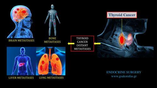 Καρκίνος θυρεοειδους και υποτροπή