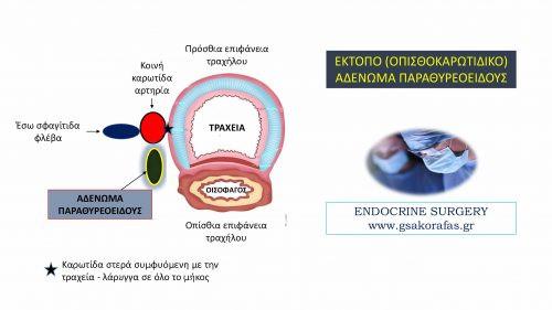 Επιμένων πρωτοπαθής υπερπαραθυρεοειδισμός σε ασθενή με έκτοπο (οπισθο-καρωτιδικό) αδένωμα παραθυρεοειδούς