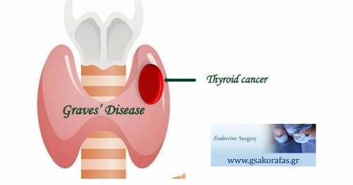 Καρκίνος θυρεοειδούς και νόσος Graves