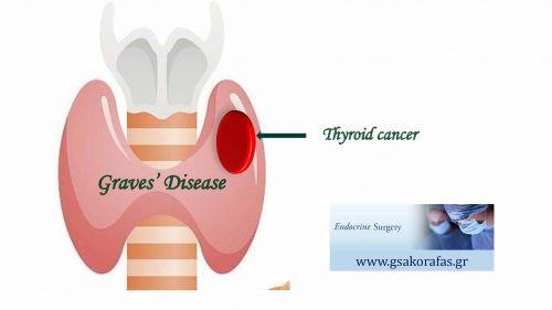Καρκίνος θυρεοειδούς και νόσος Graves - επηρεάζει ο υπερθυρεοειδισμός τη βιολογική συμπεριφορά του καρκίνου;