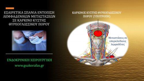 Καρκίνος κύστης θυρεογλωσσικού πόρου και λεμφαδενικές μεταστάσεις σε υπερκλείδιους λεμφαδένες