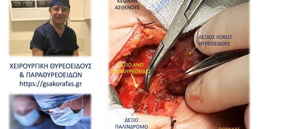 Θυρεοειδεκτομή-παραθυρεοειδεκτομή, οπτική αναγνώριση παλίνδρομου λαρυγγικού νεύρου