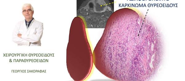 Αναπλαστικό καρκίνωμα θυρεοειδούς: Επιδημιολογία και παράγοντες κινδύνου