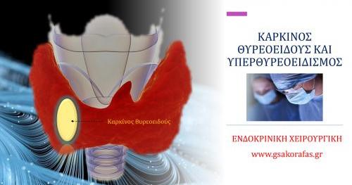 Καρκίνος θυρεοειδούς και υπερθυρεοειδισμός (νόσος Graves)