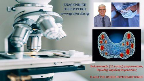 Πολυεστιακός (11 εστίες) μικροσκοπικός θηλώδης καρκίνος θυρεοειδούς