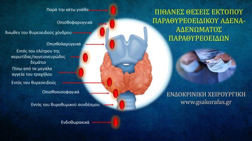 Εμβρυολογία, έκτοπος παραθυρεοειδής, έκτοπο αδένωμα παραθυρεοειδούς