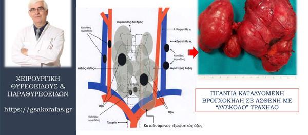 Ολική θυρεοειδεκτομή σε ασθενή με γιγάντια καταδυόμενη βρογχοκήλη και 'δύσκολο' σωματότυπο