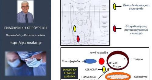 Αδένωμα παραθυρεοειδούς (οπισθοκαρωτιδικό), προεγχειρητικός εντοπισμός και επέμβαση