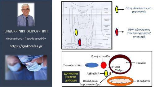 Αδένωμα παραθυρεοειδούς (οπισθοκαρωτιδικό), προεγχειρητικός εντοπισμός και επέμβαση (παραθυρεοειδεκτομή): λεπτομέρειες μεγάλης σημασίας