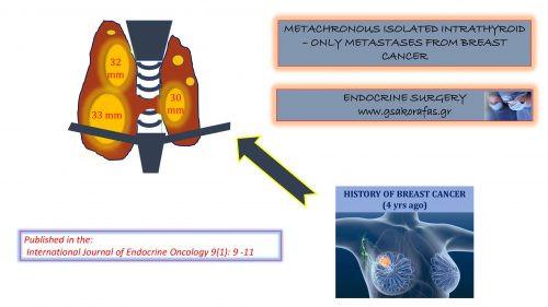 Καρκίνος θυρεοειδούς - σπάνια μετάσταση μόνο στο θυρεοειδή από καρκίνο μαστού