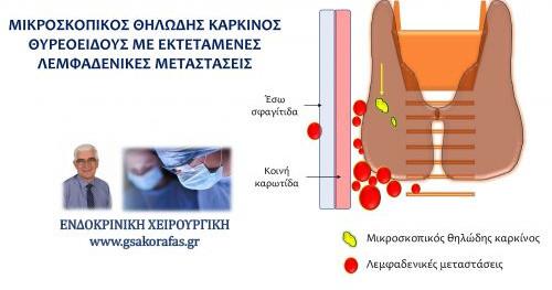 Μικροσκοπικός  θηλώδης καρκίνος θυρεοειδούς με εκτεταμένες λεμφαδενικές μεταστάσεις: η σημασία του