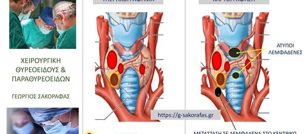 Καρκίνος θυρεοειδούς & χαρτογράφηση λεμφαδένων -η σημασία του λεπτομερούς προεγχειρητικού ελέγχου