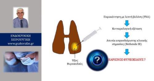 Όζος με ατυπία απροσδιόριστης κλινικής σημασίας: καρκίνος θυρεοειδούς