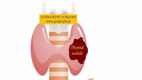 Όζοι θυρεοειδούς - κλινική παρουσίαση και διάγνωση