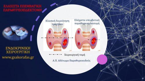 Υπερπαραθυρεοειδισμός και ελάχιστα επεμβατική παραθυρεοειδεκτομή