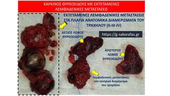 Εκτεταμένες λεμφαδενικές μεταστάσεις σε ασθενή με καρκίνο θυρεοειδούς