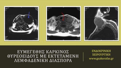 Θηλώδης καρκίνος θυρεοειδούς με εκτεταμένες λεμφαδενικές μεταστάσεις_1