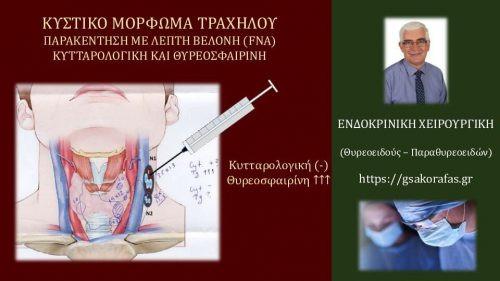 Καρκίνος θυρεοειδούς και Κυστικό μόρφωμα τραχήλου: Παρακέντηση με λεπτή βελόνη (FNA) και θυρεοσφαιρίνη στο υλικό της αναρρόφησης
