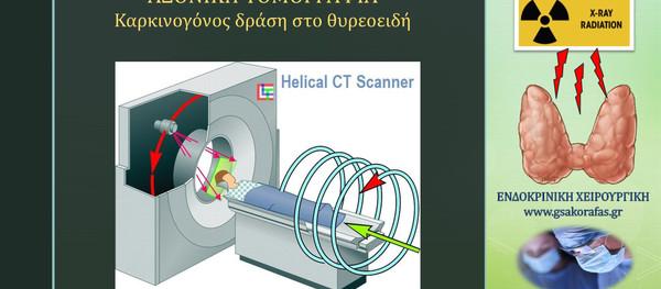 Αξονική τομογραφία και θυρεοειδής – καρκινογόνος δράση