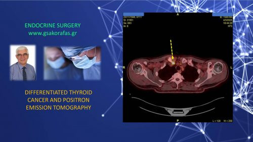 Positron emission tomography and differentiated thyroid cancer
