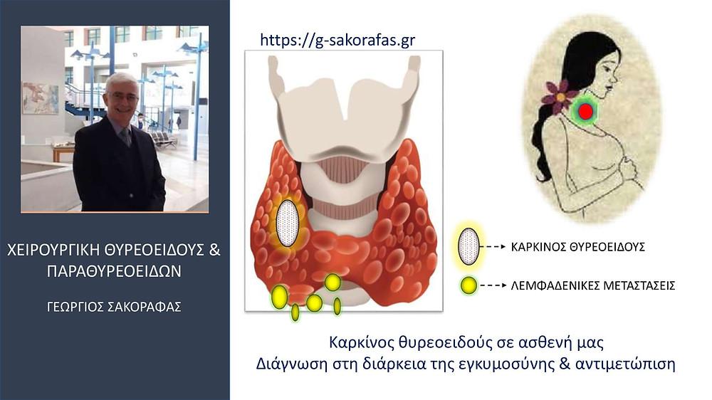 Καρκίνος Θυρεοειδούς στην Κύηση