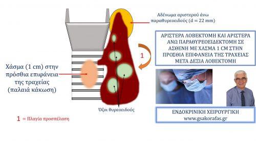 Αριστερά λοβεκτομή και αριστερά άνω παραθυρεοειδεκτομή σε ασθενή με ιστορικό κάκωσης και χάσμα της τραχείας μετά δεξιά λοβεκτομή