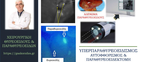 Υπερπαραθυρεοειδισμός και αυτοφθορισμός – μία νέα τεχνική στην παραθυρεοειδεκτομή