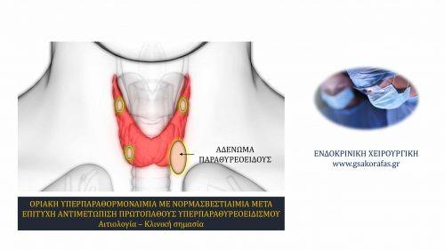 Πρωτοπαθής υπερπαραθυρεοειδισμός - Υπερπαραθορμοναιμία με νορμοασβεστιαιμία μετά επιτυχή παραθυρεοειδεκτομή