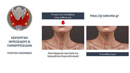 περιστατικό επανεπέμβασης σε ασθενή με καρκίνωμα θυρεοειδούς με στόχο τον λεμφαδενικό καθαρισμό τραχήλου